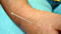 falta-de-oferta-da-acupuntura-no-sus-ainda-e-um-problema